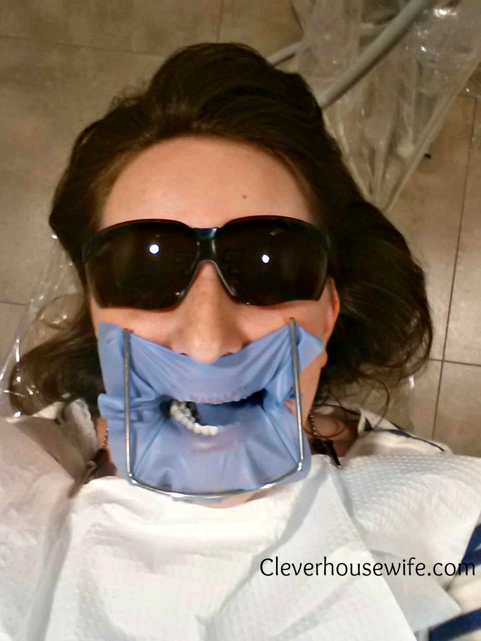 Close Encounters with a Dental Dam and Tons of Anesthetic – Eeek
