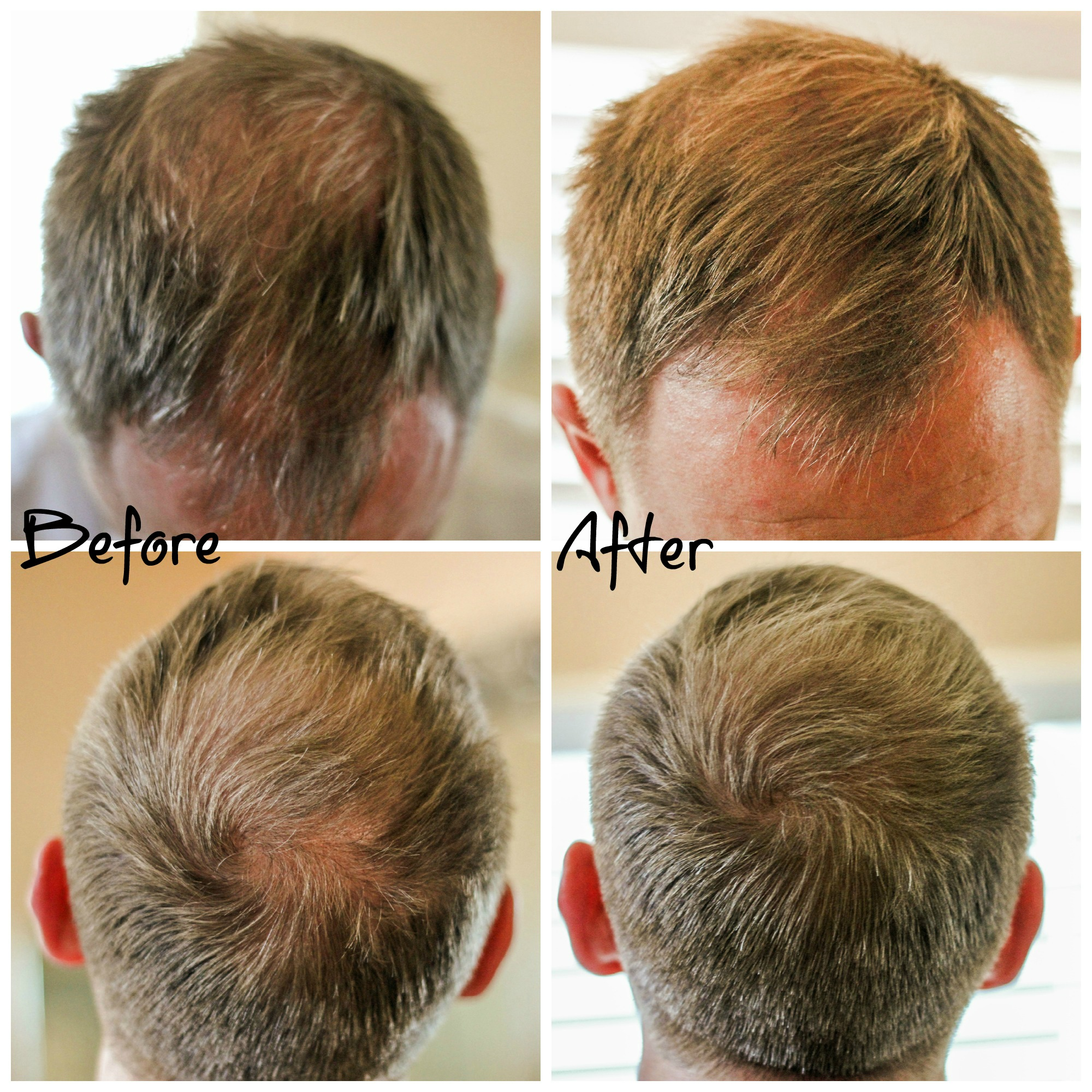 Hair Thinning And Hair Loss What S A Man To Do Clever