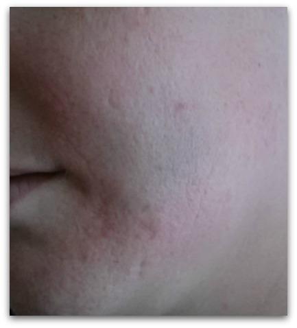 bruised cheek