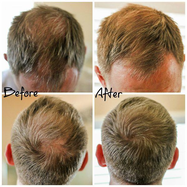 Viviscal Hair Filler Fibers Before and After Pictures