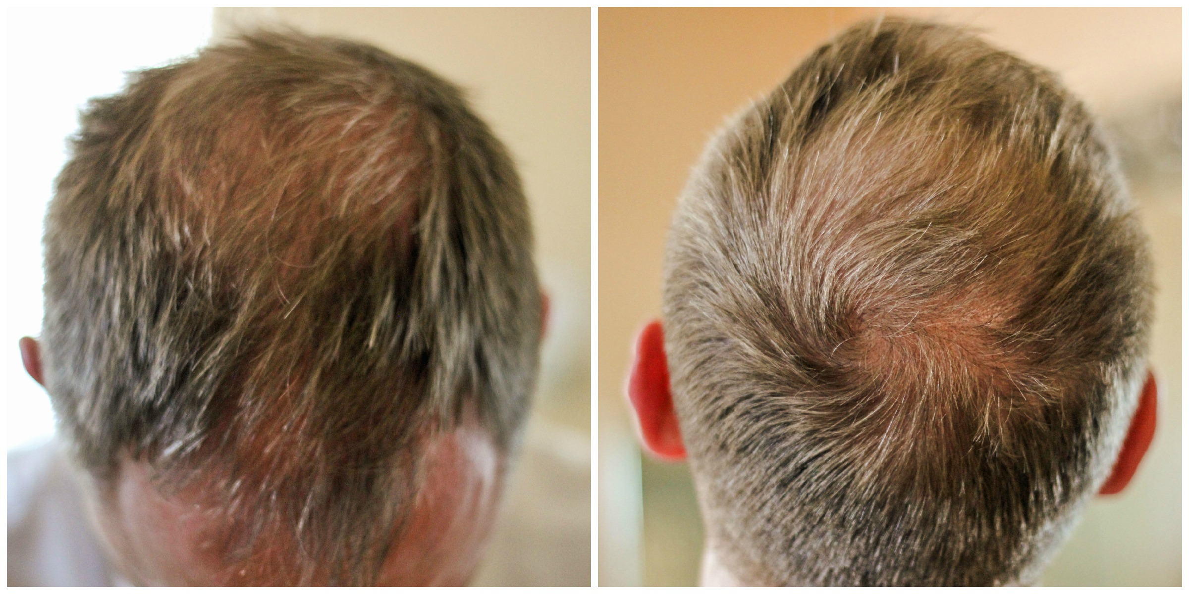 hair thinning and hair loss: what's a man to do? - clever housewife